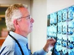前列腺癌早期使用阿比特龙治疗效果更好
