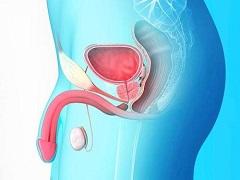 阿比特龙改善前列腺癌的生存期